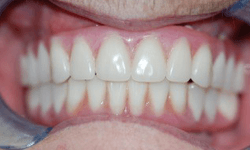 Closeup of woman's smile after Teeth in a Day placement