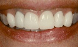Closeup of six front teeth after dental crown placement