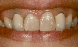 Closeup of top front teeth with damage and discoloration
