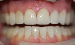 Closeup of smile after DaVincia veneer placement
