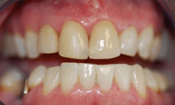 Closeup of smile before veneer placement