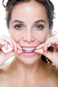 Change your smile and change your life with Invisalign in San Antonio