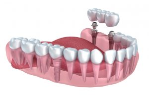 ental implants in San Antonio from New Image Dentistry can replace one, two, or a whole row of missing teeth.