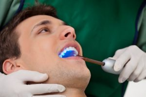 A man getting a cosmetic dental treatment.