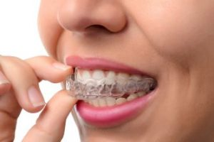 A woman who is using Invisalign clear braces is putting in a tray